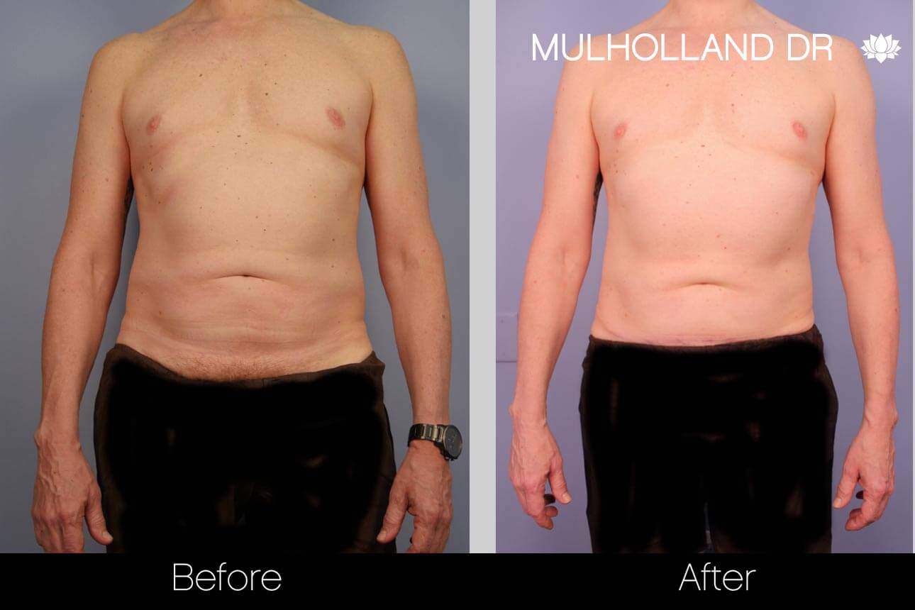 Abdomen Liposuction - Before and After Gallery - Patient Photo 1