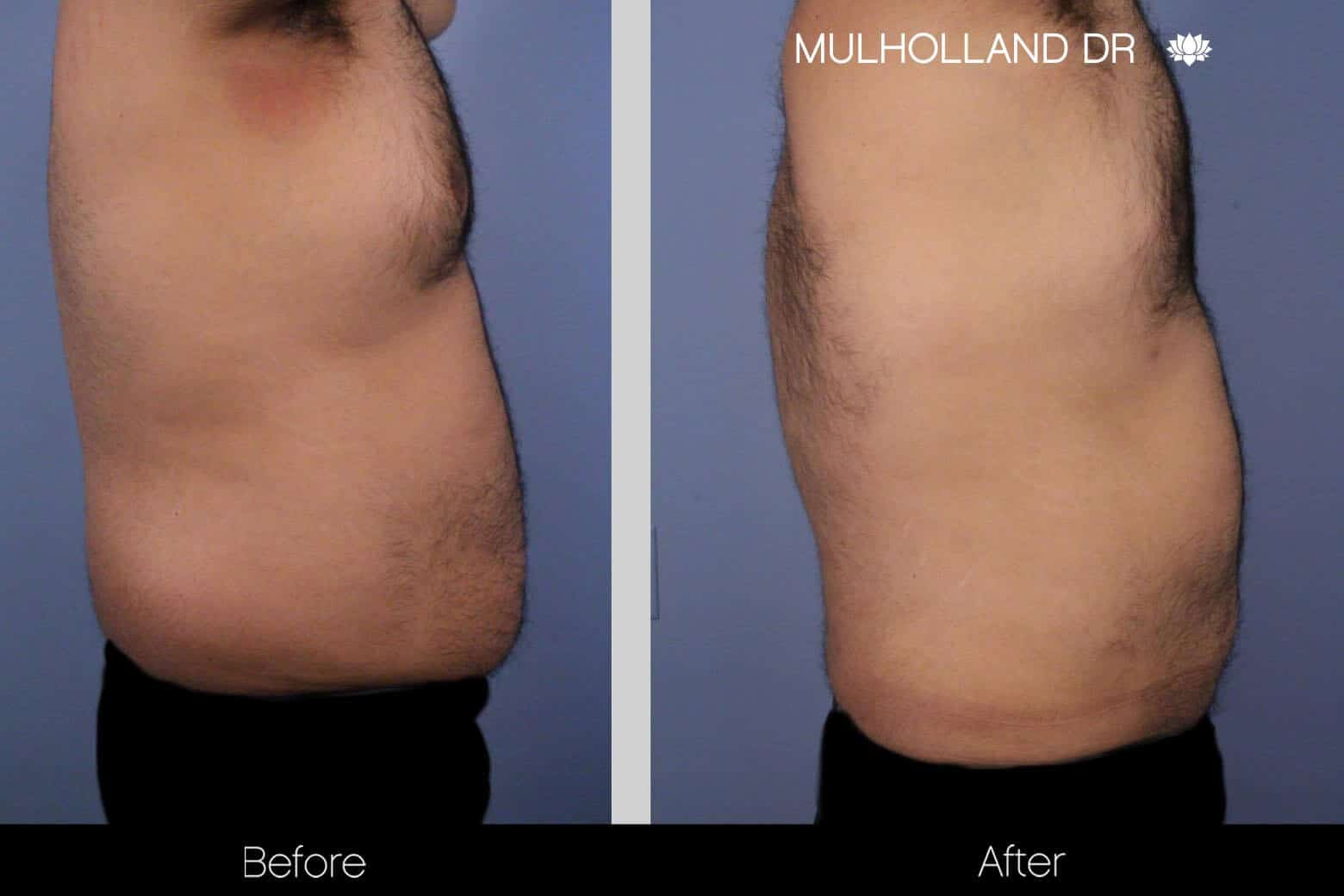 Abdomen Liposuction - Before and After Gallery - Patient Photo 10