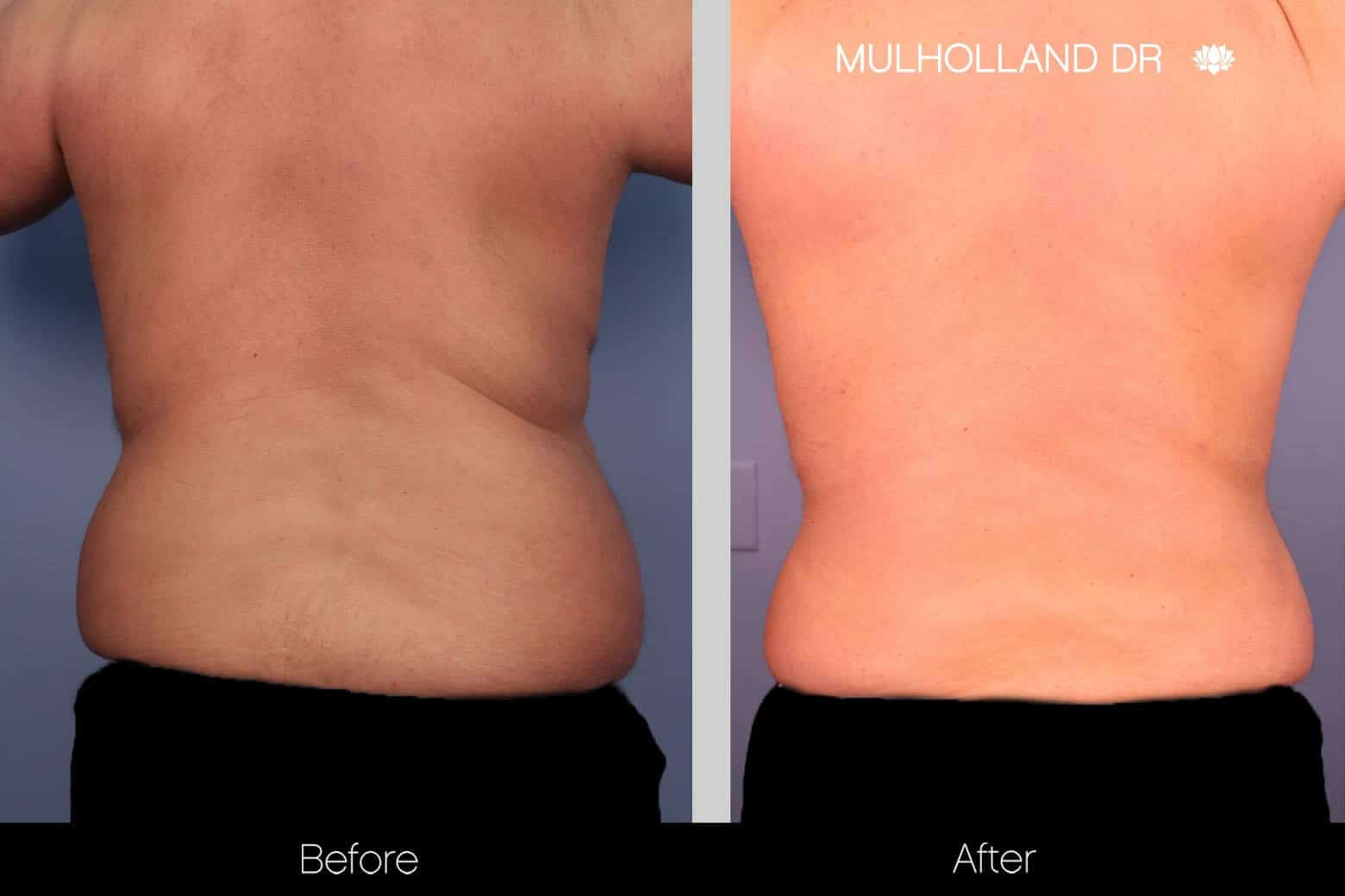 Abdomen Liposuction - Before and After Gallery - Patient Photo 11