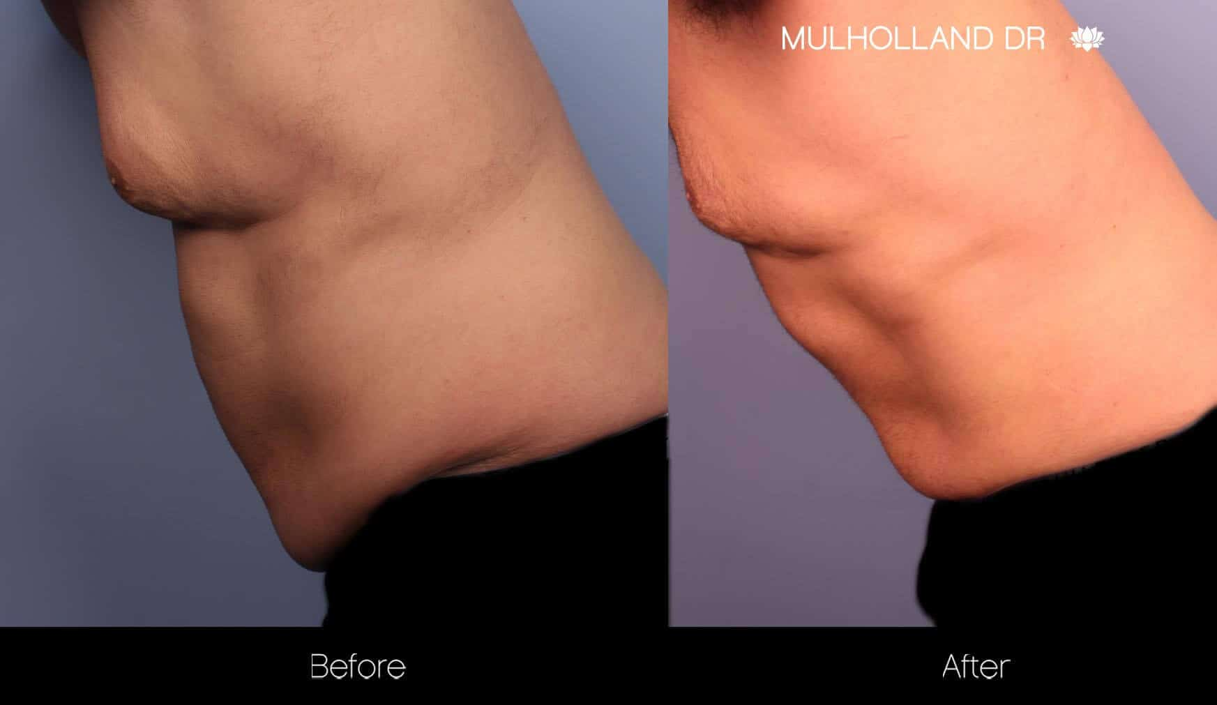 Abdomen Liposuction - Before and After Gallery - Patient Photo 12