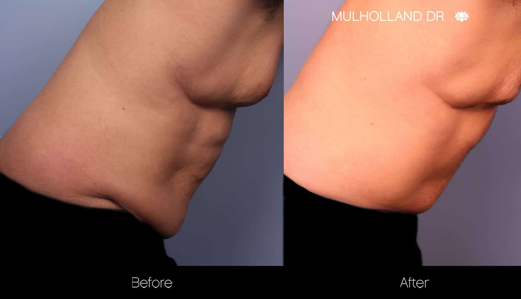 aAbdomen Liposuction - Before and After Gallery - Patient Photo 13