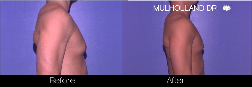Abdomen Liposuction - Before and After Gallery - Patient Photo 14