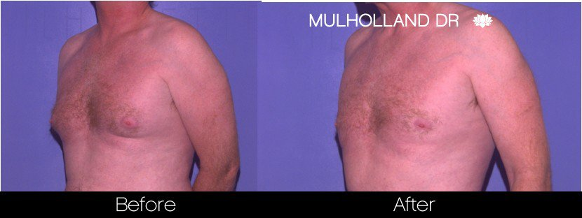 Abdomen Liposuction - Before and After Gallery - Patient Photo 17