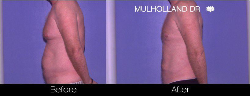 Abdomen Liposuction - Before and After Gallery - Patient Photo 18