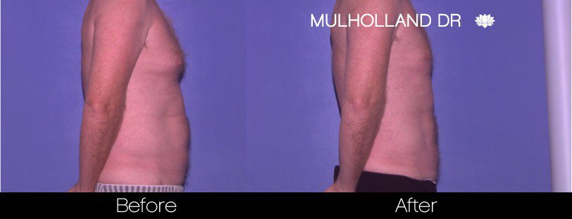 Abdomen Liposuction - Before and After Gallery - Patient Photo 19