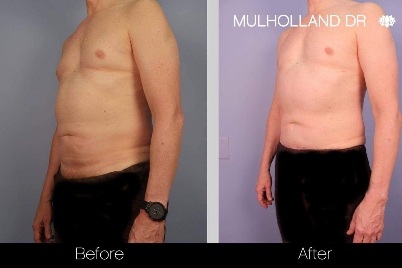 Abdomen Liposuction - Before and After Gallery - Patient Photo 2