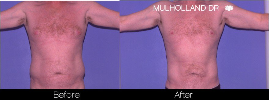 Abdomen Liposuction - Before and After Gallery - Patient Photo 21