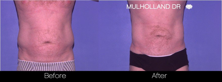 Abdomen Liposuction - Before and After Gallery - Patient Photo 22
