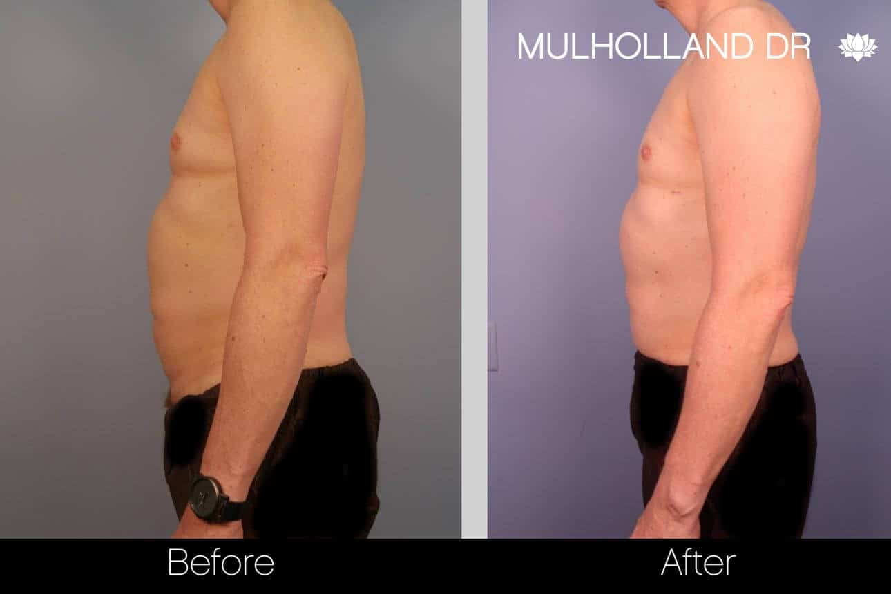 Abdomen Liposuction - Before and After Gallery - Patient Photo 3