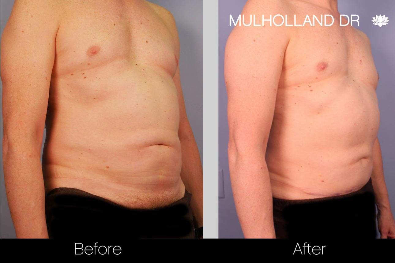 Abdomen Liposuction - Before and After Gallery - Patient Photo 4