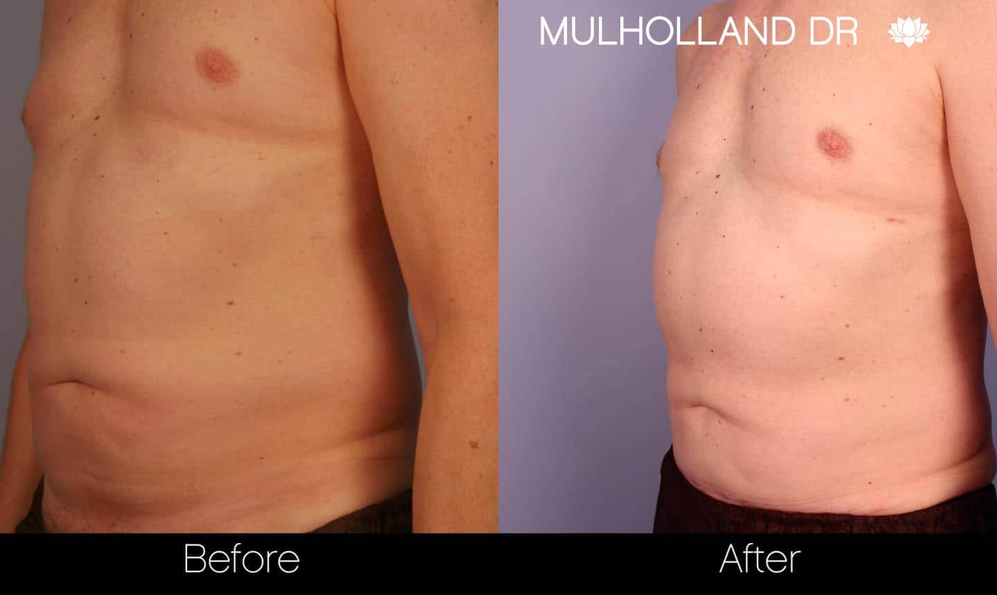 Abdomen Liposuction - Before and After Gallery - Patient Photo 5