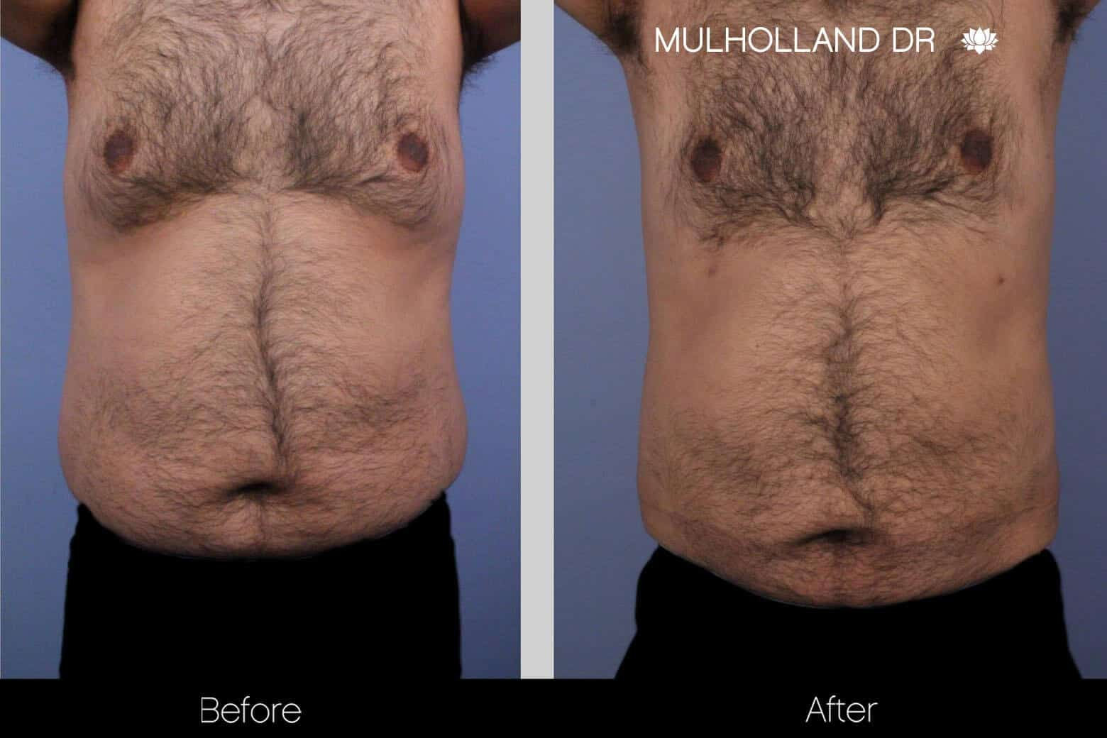 Abdomen Liposuction - Before and After Gallery - Patient Photo 6