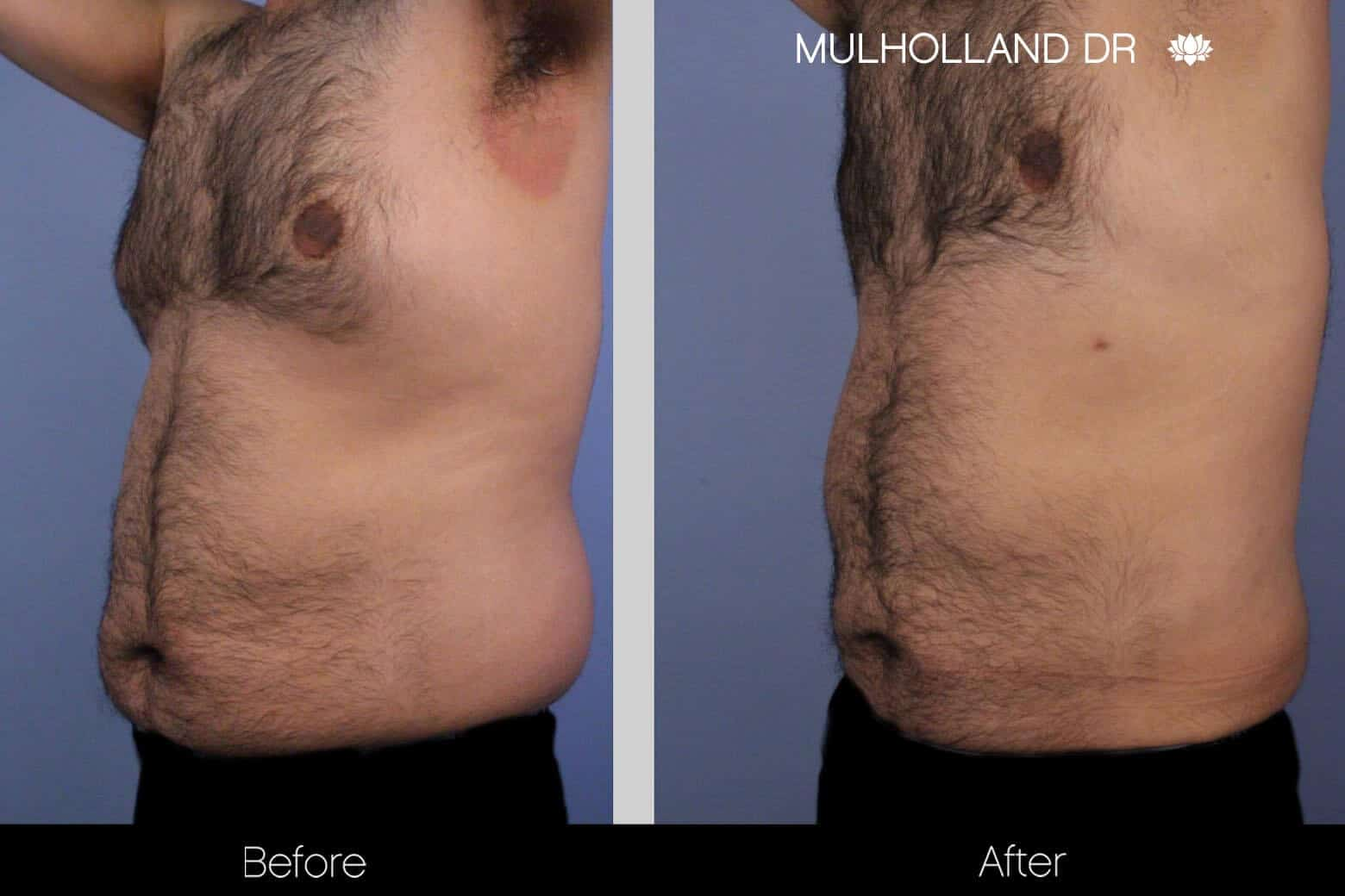 Abdomen Liposuction - Before and After Gallery - Patient Photo 7