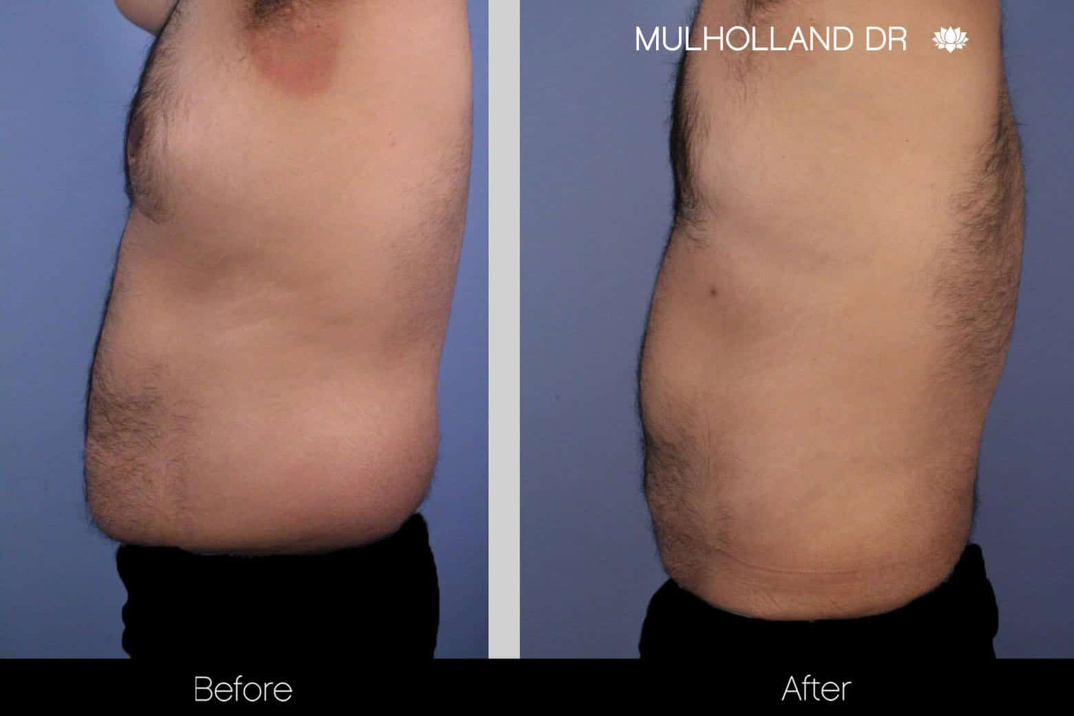 Abdomen Liposuction - Before and After Gallery - Patient Photo 8