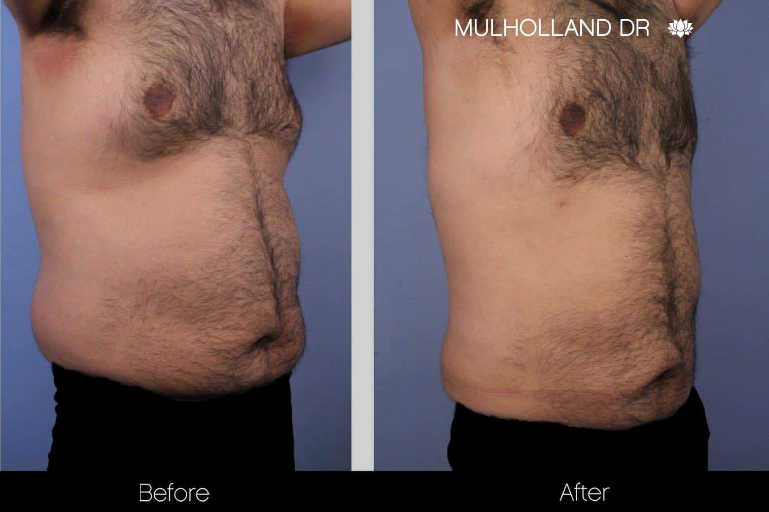 Abdomen Liposuction - Before and After Gallery - Patient Photo 9