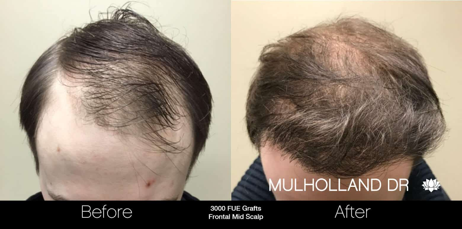 Artas Hair Transplant - Before and After Gallery - Patient Photo 1