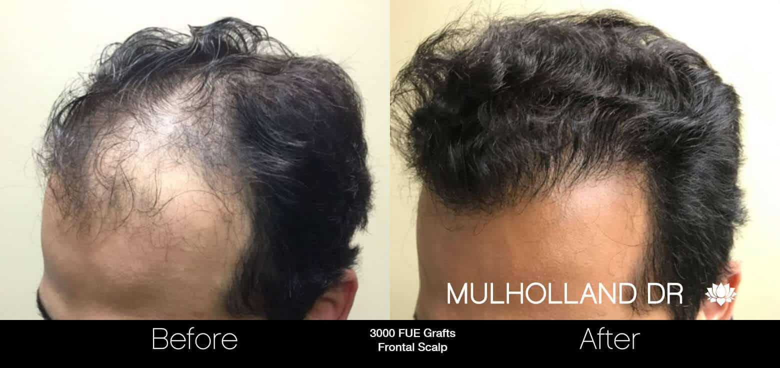 Artas Hair Transplant - Before and After Gallery - Patient Photo 10