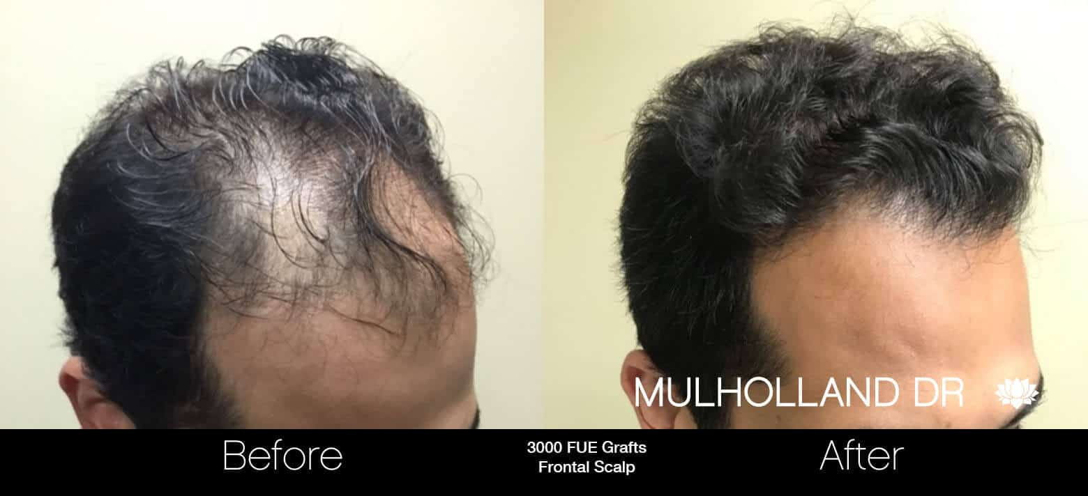 Artas Hair Transplant - Before and After Gallery - Patient Photo 11
