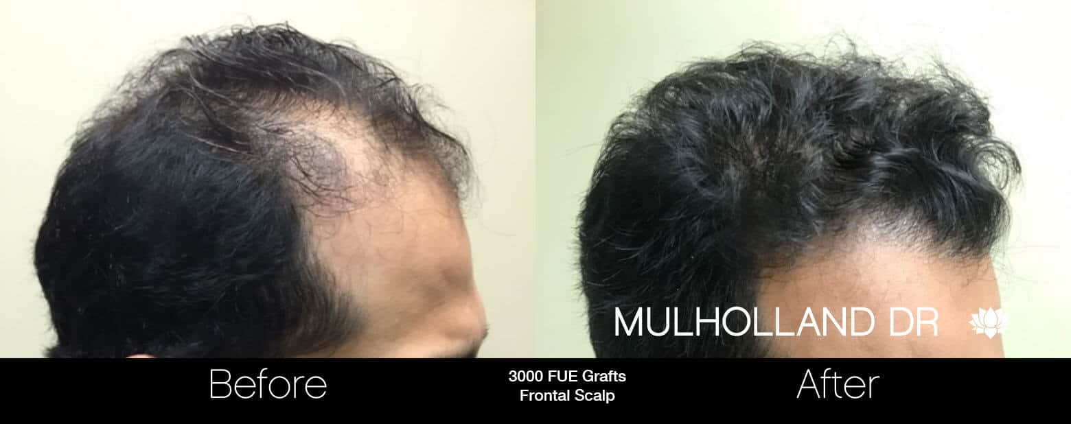 Artas Hair Transplant - Before and After Gallery - Patient Photo 13