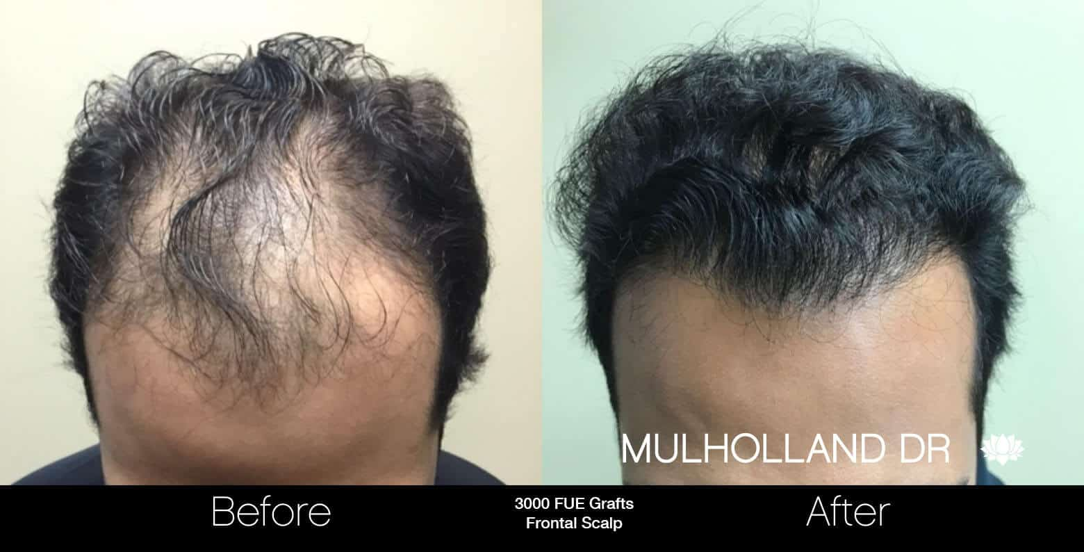 Artas Hair Transplant - Before and After Gallery - Patient Photo 14