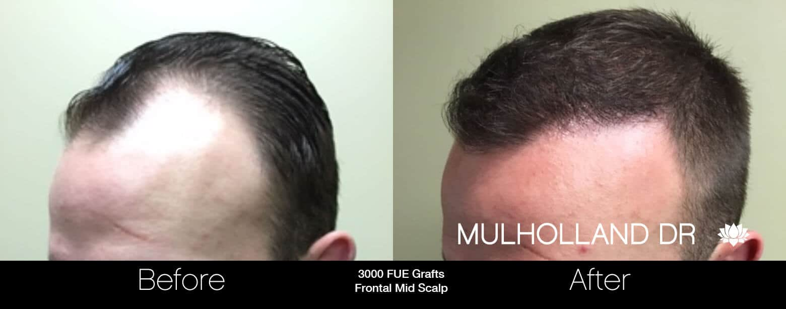 Artas Hair Transplant - Before and After Gallery - Patient Photo 15