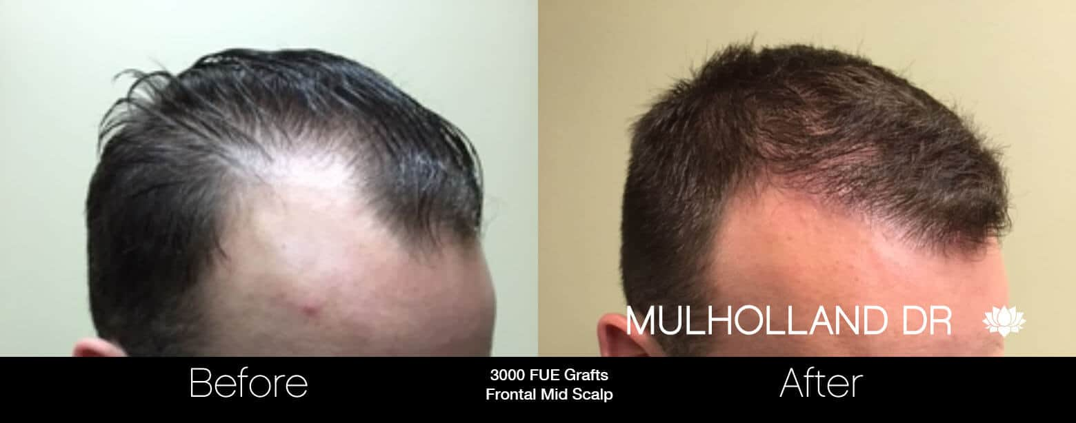 Artas Hair Transplant - Before and After Gallery - Patient Photo 16