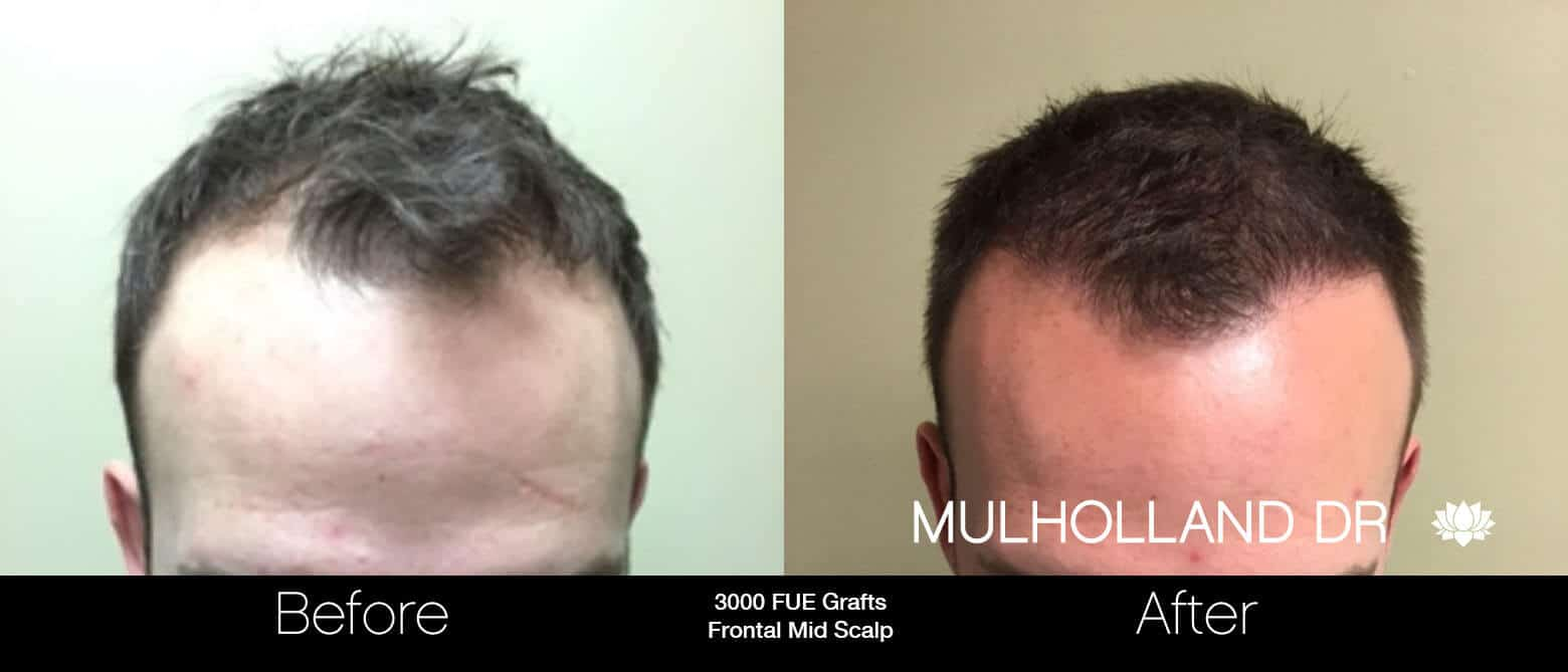 Artas Hair Transplant - Before and After Gallery - Patient Photo 17