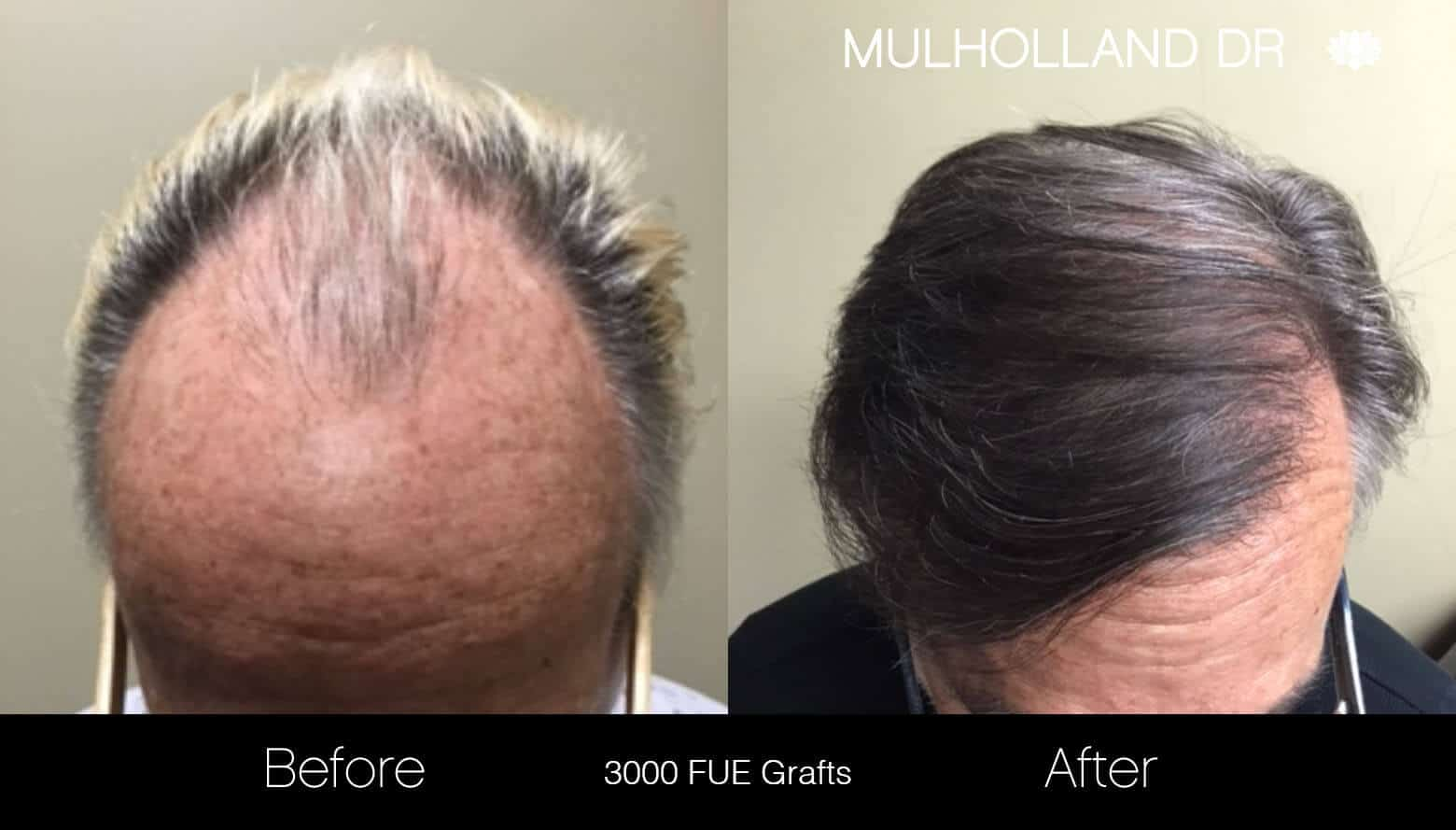 Artas Hair Transplant - Before and After Gallery - Patient Photo 18