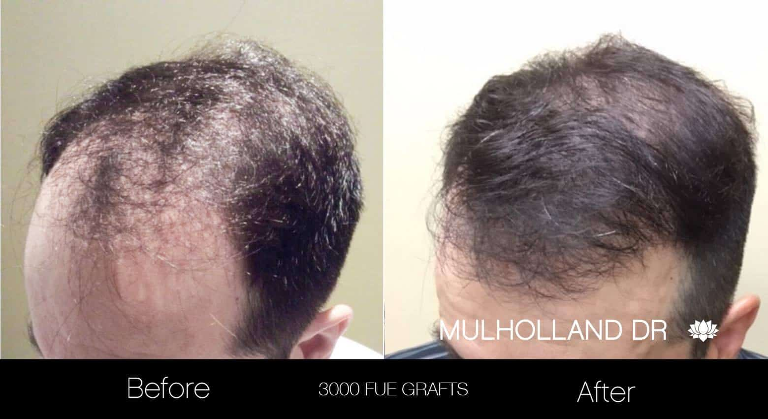 Artas Hair Transplant - Before and After Gallery - Patient Photo 19