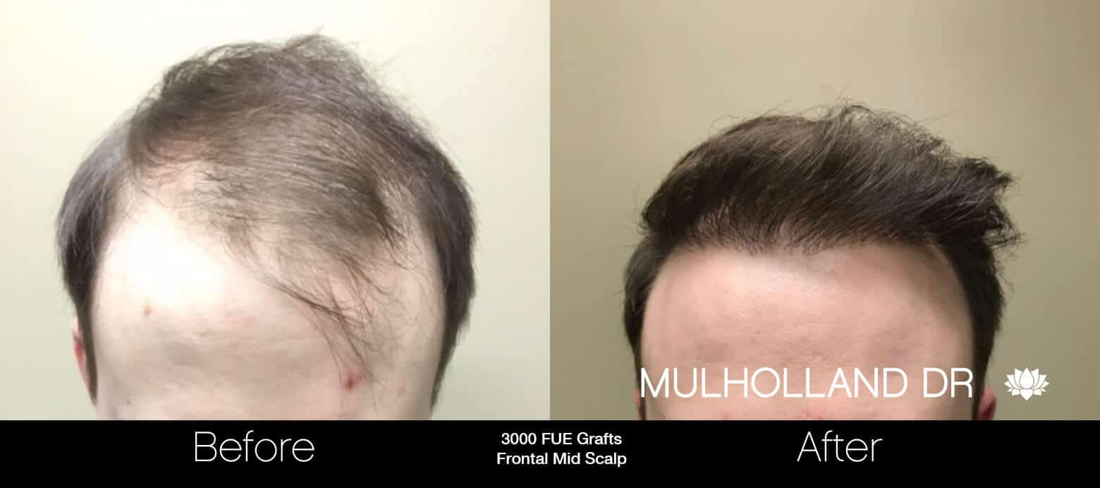 Artas Hair Transplant - Before and After Gallery - Patient Photo 2