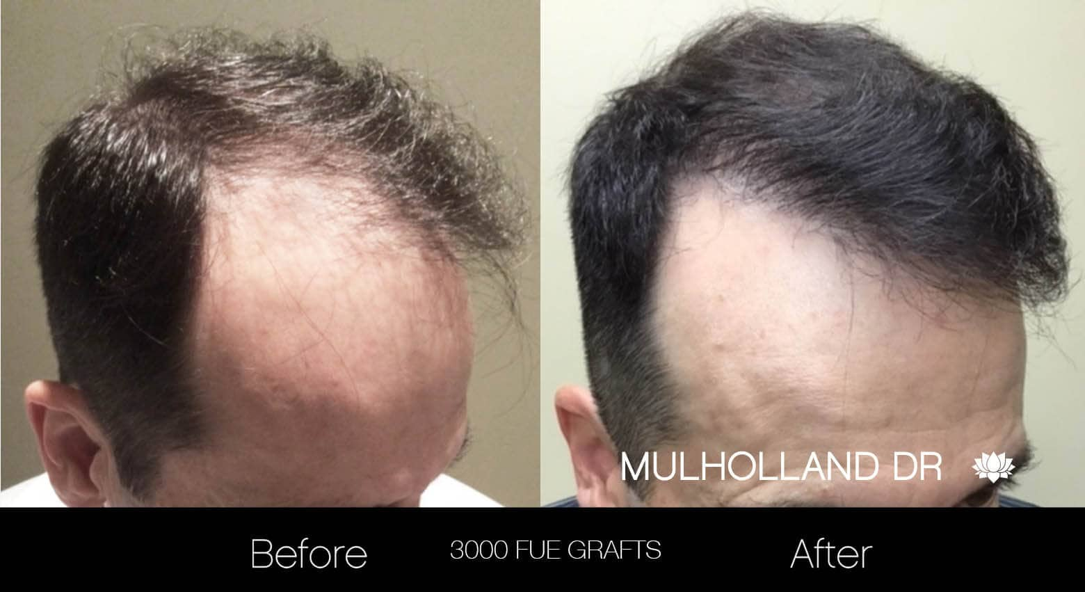 Artas Hair Transplant - Before and After Gallery - Patient Photo 20