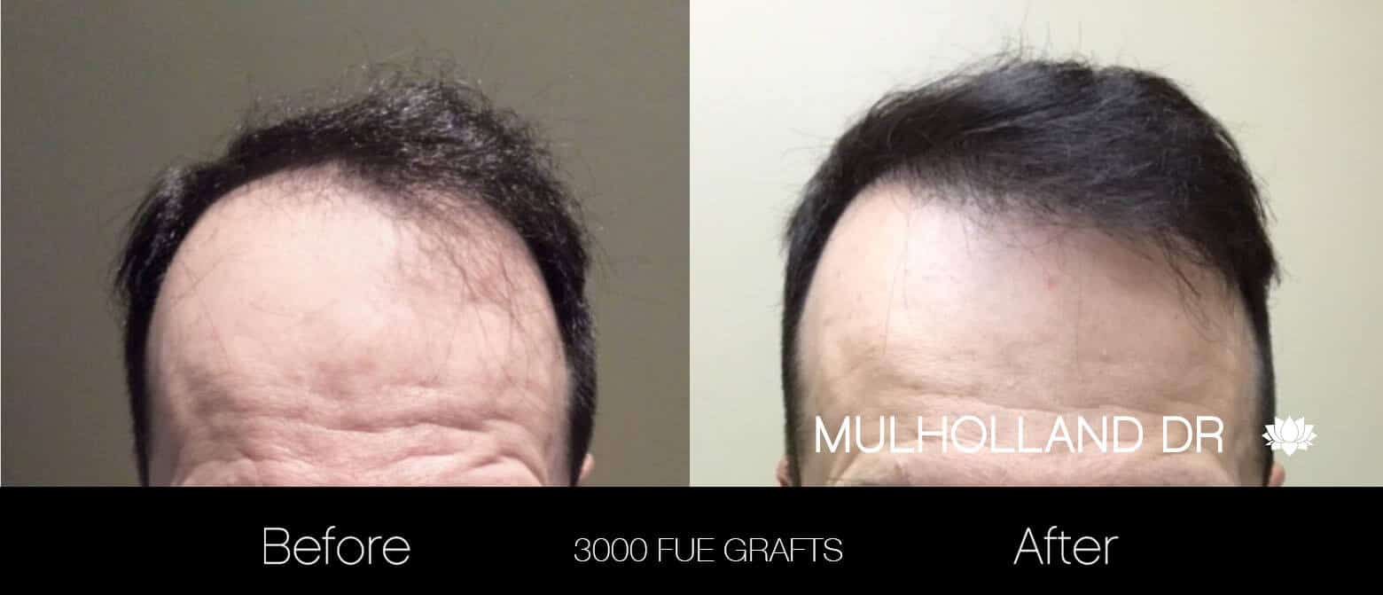 Artas Hair Transplant - Before and After Gallery - Patient Photo 21