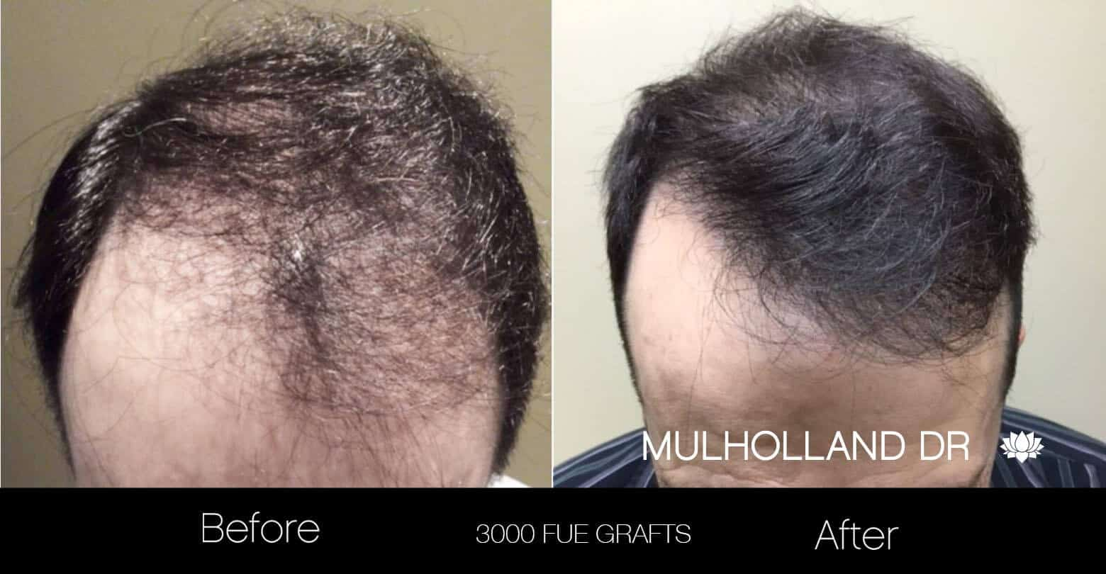 Artas Hair Transplant - Before and After Gallery - Patient Photo 22