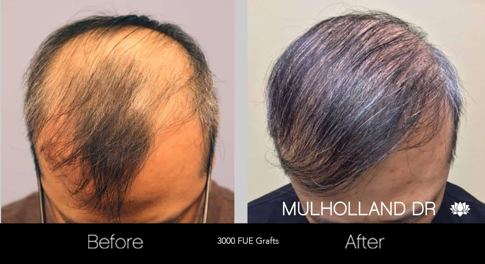 Artas Hair Transplant - Before and After Gallery - Patient Photo 23