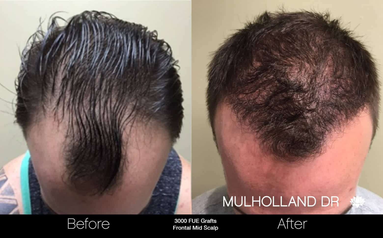 Artas Hair Transplant - Before and After Gallery - Patient Photo 24