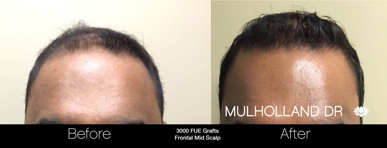 Artas Hair Transplant - Before and After Gallery - Patient Photo 25