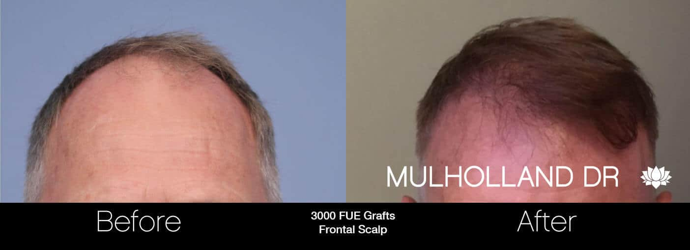 Artas Hair Transplant - Before and After Gallery - Patient Photo 26