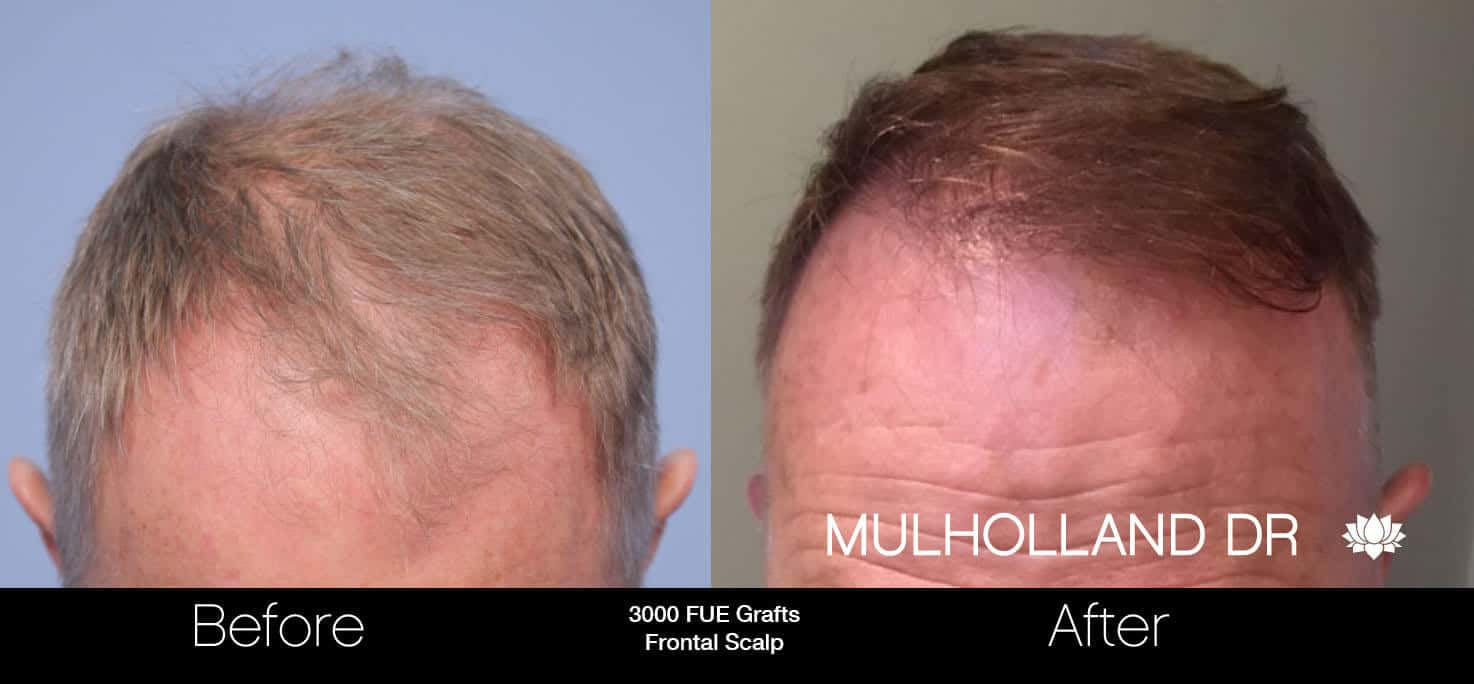 Artas Hair Transplant - Before and After Gallery - Patient Photo 27