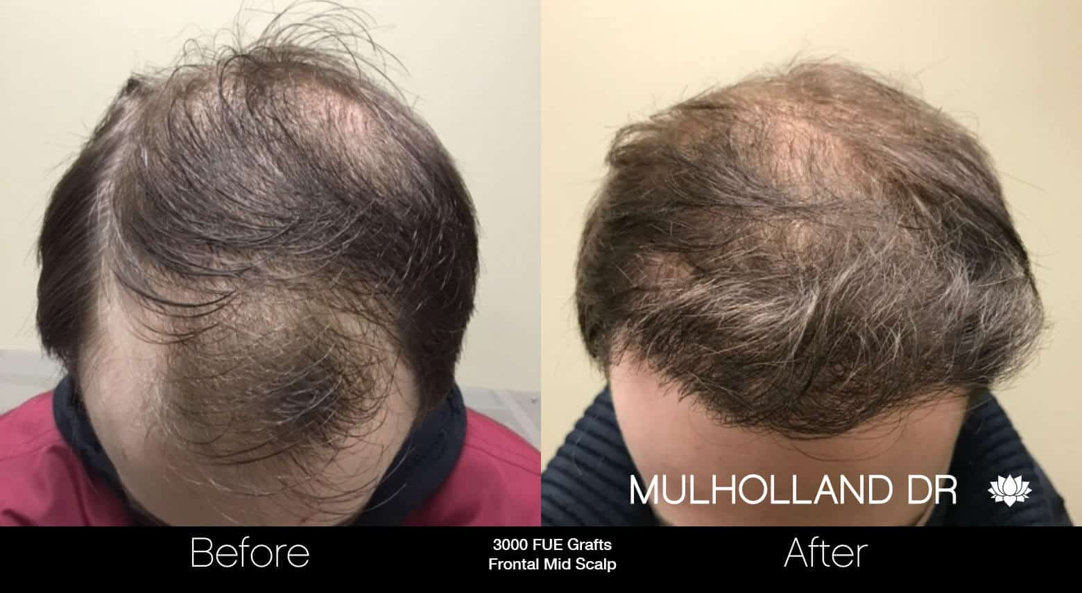 Artas Hair Transplant - Before and After Gallery - Patient Photo 28