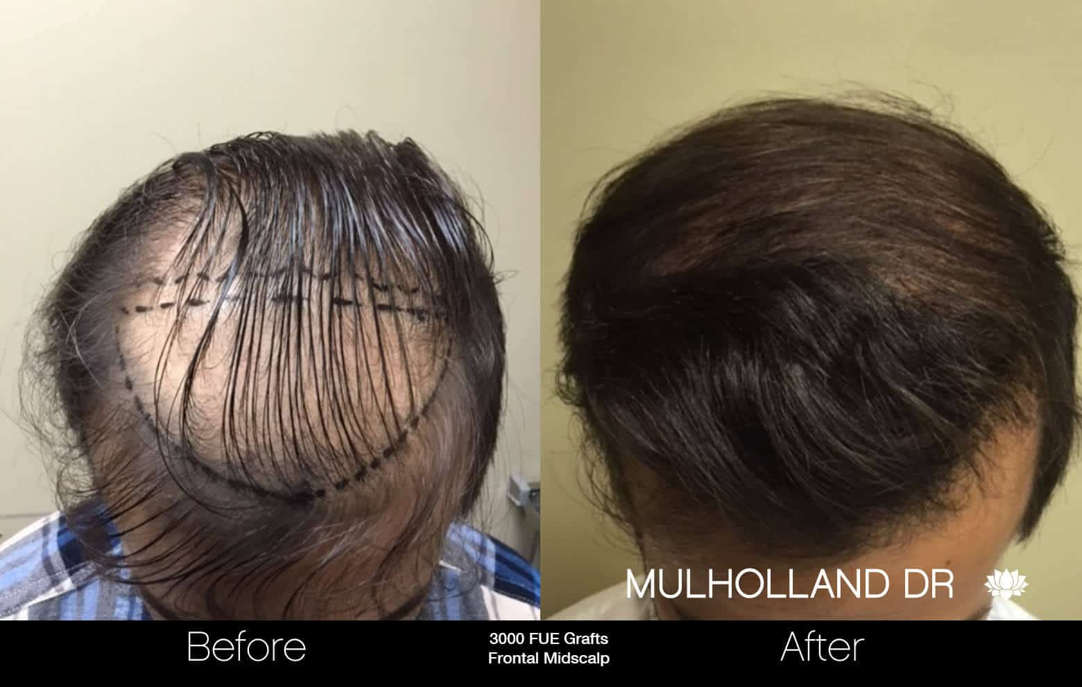 Artas Hair Transplant - Before and After Gallery - Patient Photo 29