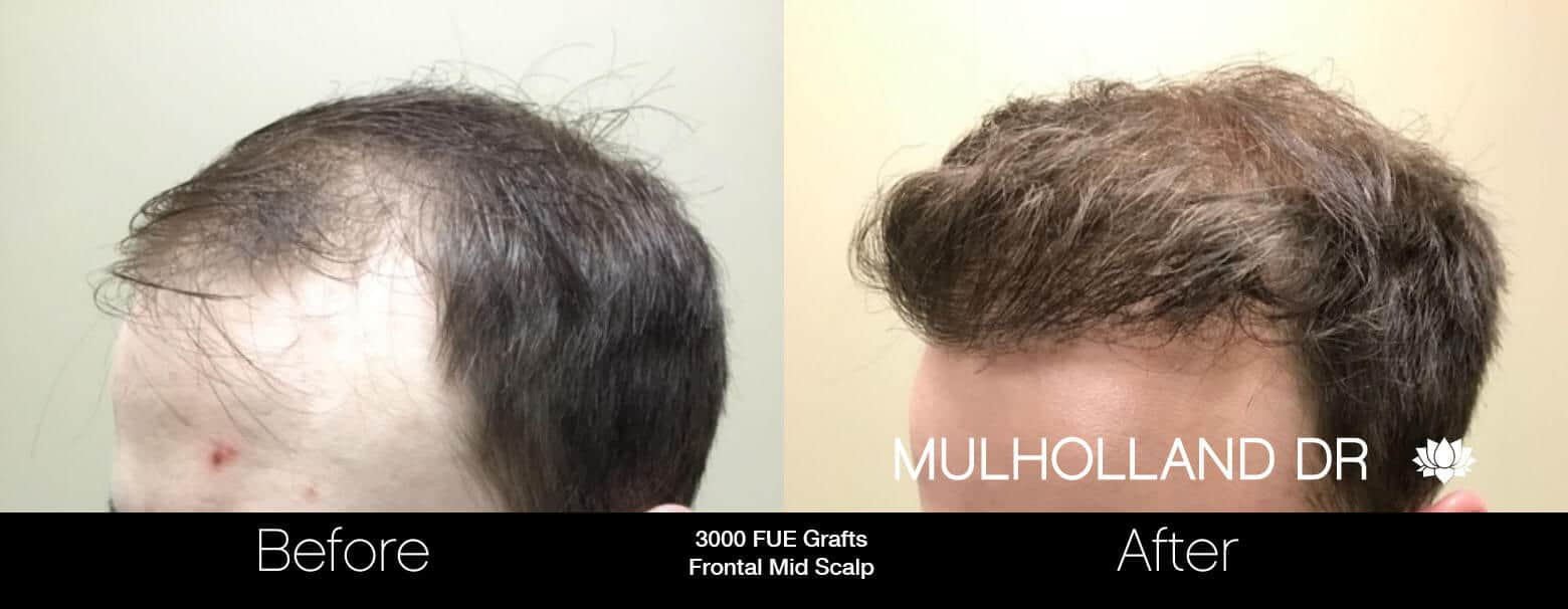 Artas Hair Transplant - Before and After Gallery - Patient Photo 3