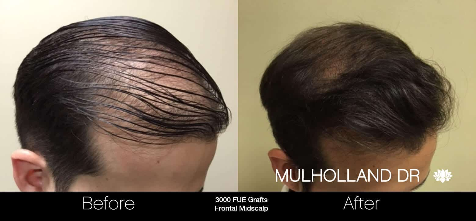 Artas Hair Transplant - Before and After Gallery - Patient Photo 30