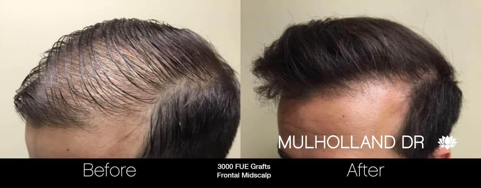 Artas Hair Transplant - Before and After Gallery - Patient Photo 31