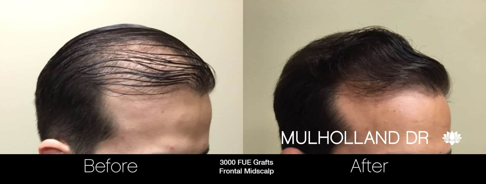 Artas Hair Transplant - Before and After Gallery - Patient Photo 33