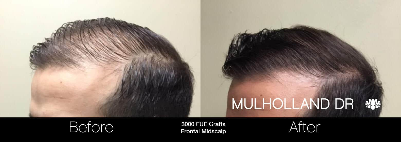 Artas Hair Transplant - Before and After Gallery - Patient Photo 34