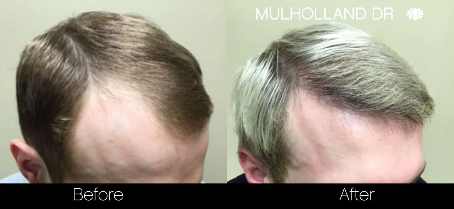 Artas Hair Transplant - Before and After Gallery - Patient Photo 35