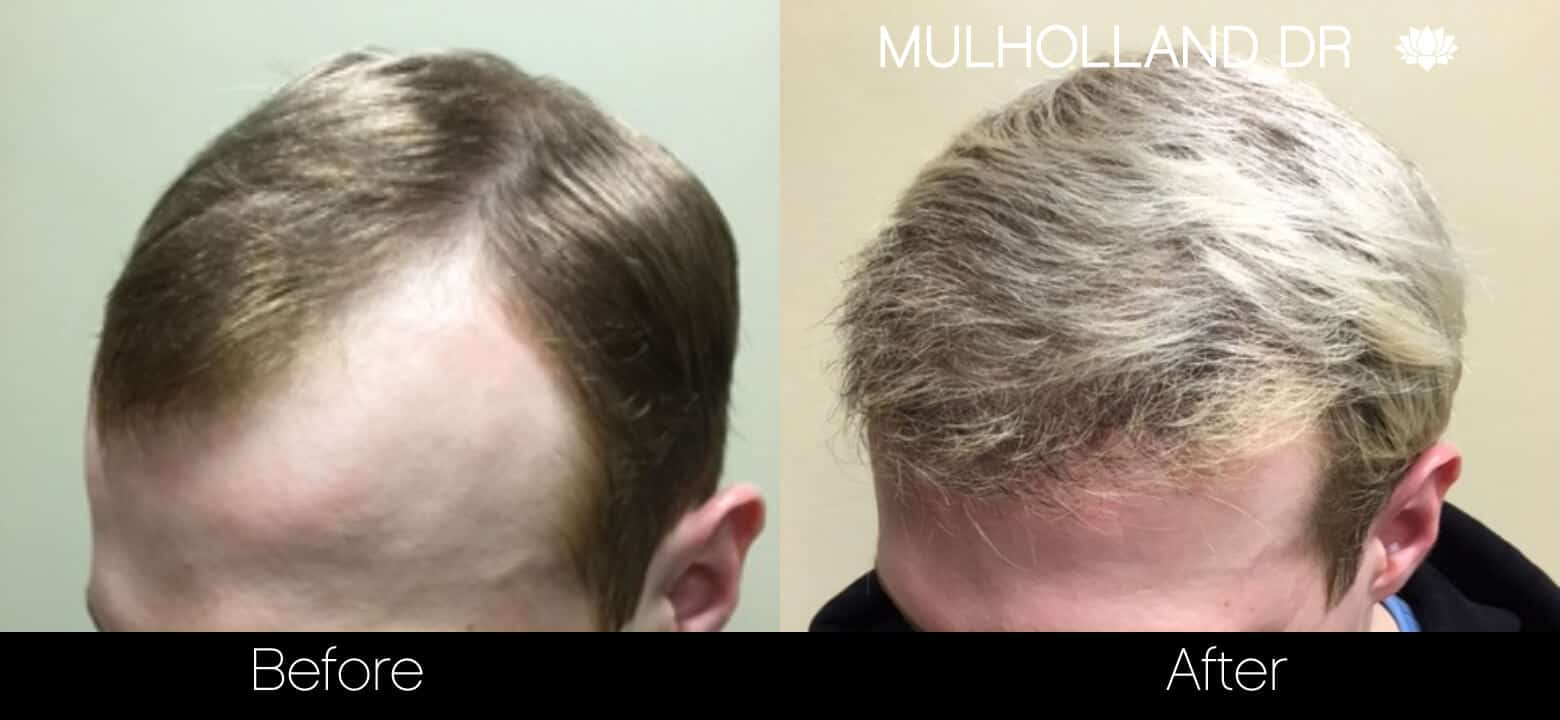 Artas Hair Transplant - Before and After Gallery - Patient Photo 36