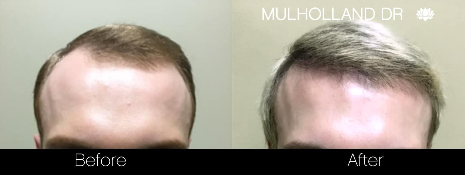 Artas Hair Transplant - Before and After Gallery - Patient Photo 37