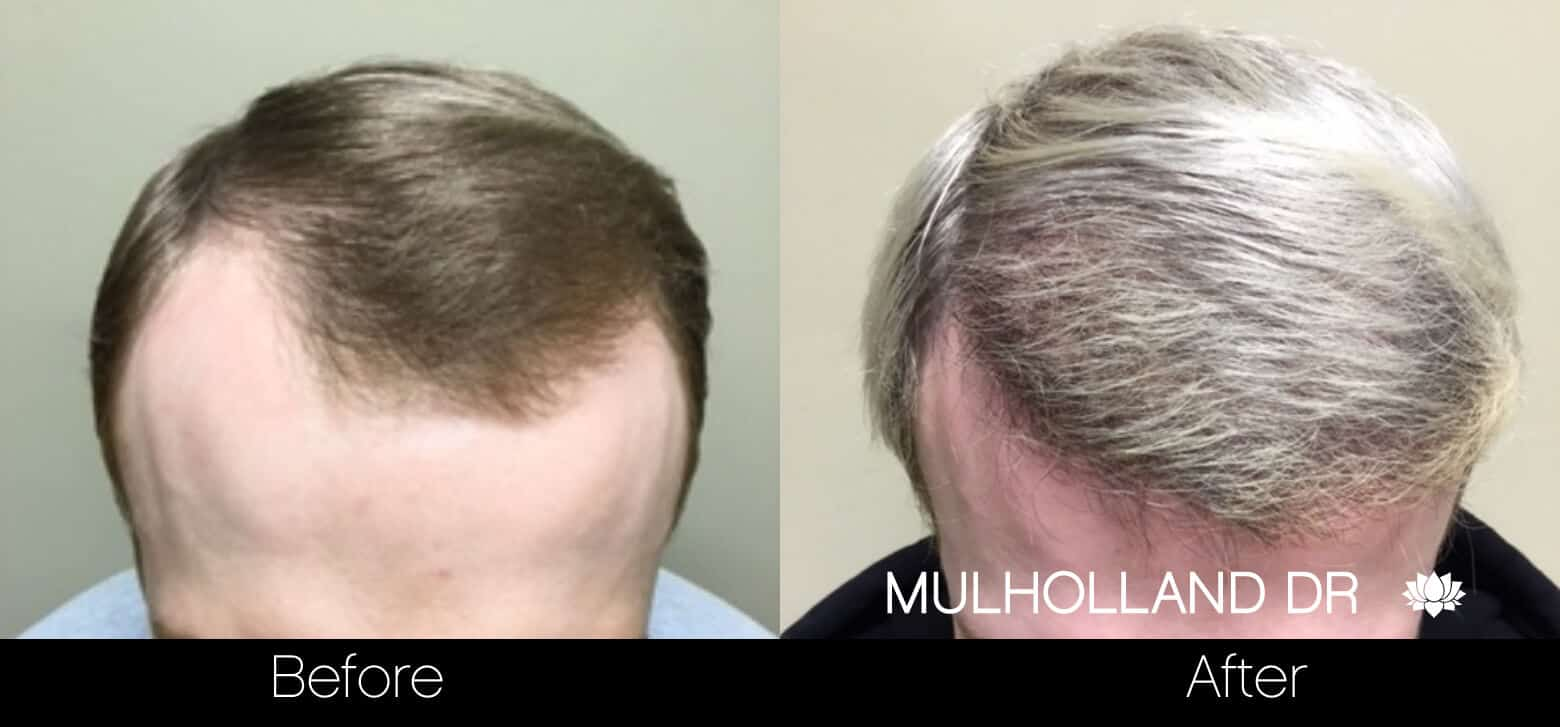 Artas Hair Transplant - Before and After Gallery - Patient Photo 38