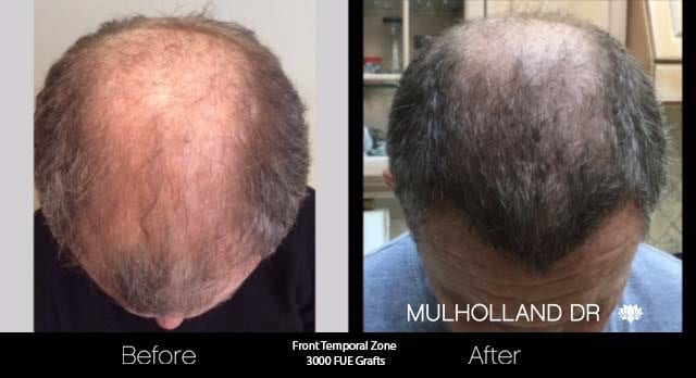 Artas Hair Transplant - Before and After Gallery - Patient Photo 39